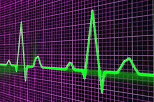 alive-pulse-graph-screen